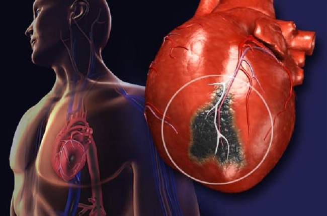 difference between heart attack and cardiac attack